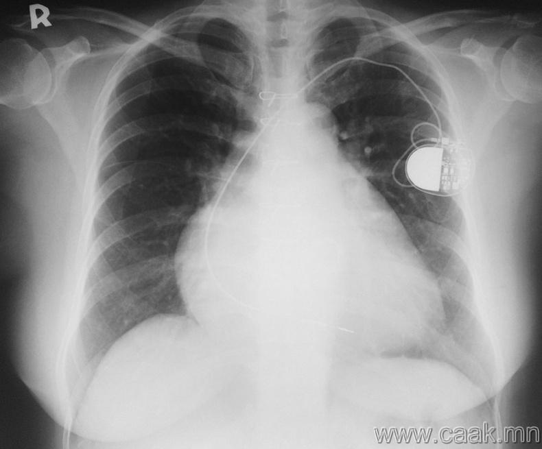 Зүрхний электрон төхөөрөмж.
