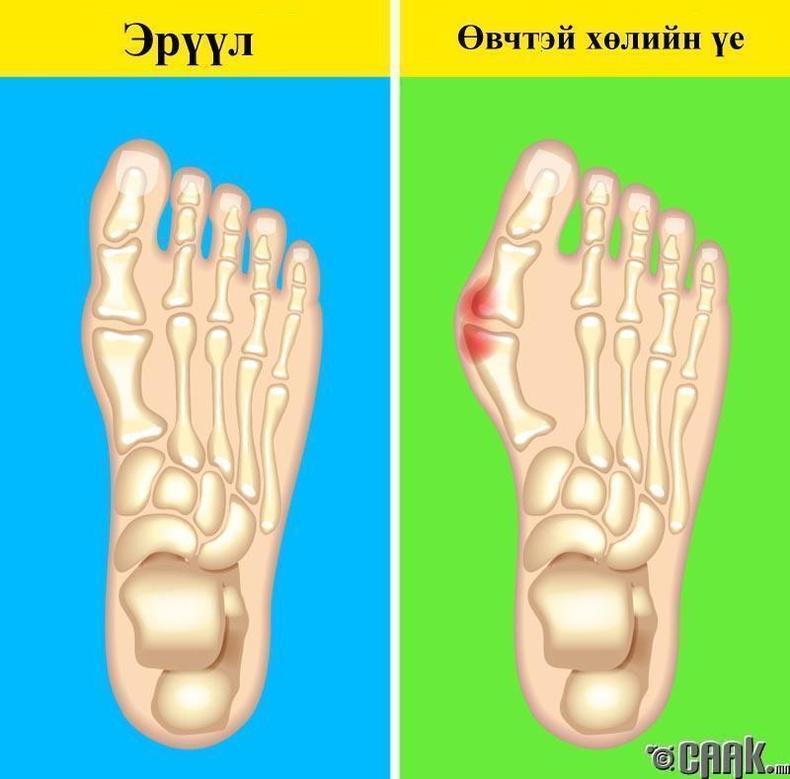 Хөлийн үе өвчтэй байх