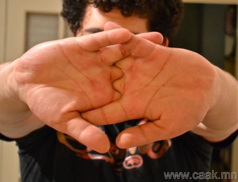 Хуруугаа дугаргавал үе мөчний өвчтэй болно