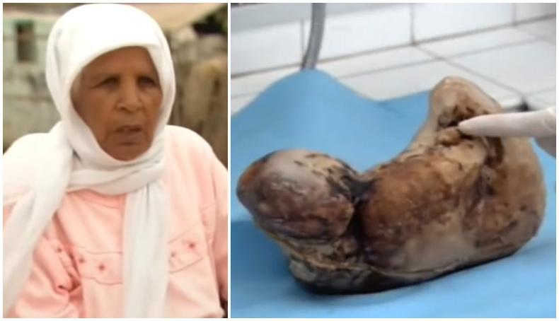 46 жил хүүхэд тээсэн эмэгтэй