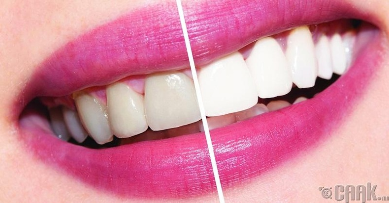 Шүдний өнгө