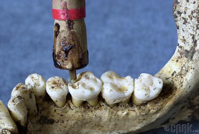 Шүдний өрөм