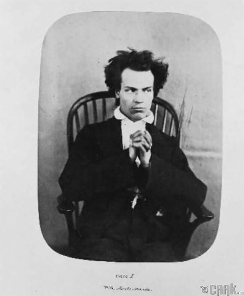 """Уильям Томас Грин - 1857 онд """"хурц хэлбэрийн галзуу"""" гэсэн оноштой хэвтэн эмчлүүлж байв."""