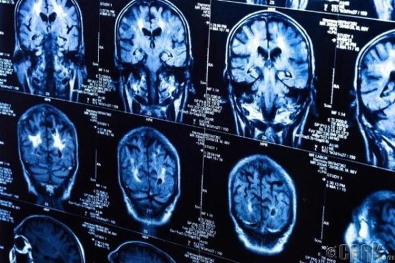 Бид бодохдоо: Тархи үхэшгүй