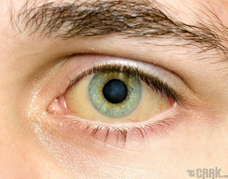 Нүд шарлах