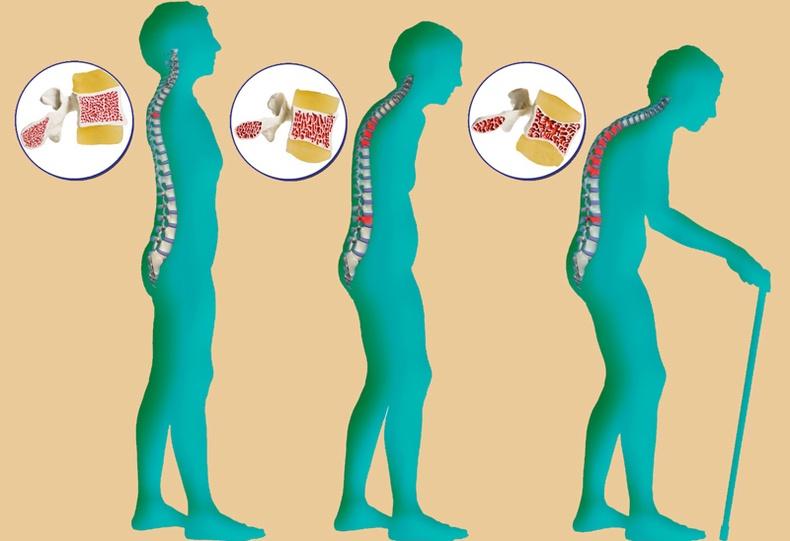 Ясны сийрэгжилтийг эмчлэх эртний арга