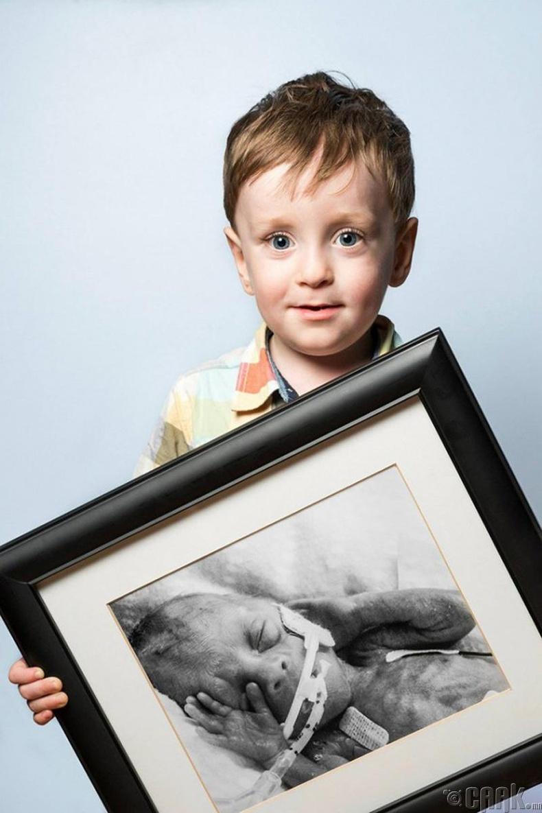 Феликс, 24 долоо хоногтой төрсөн