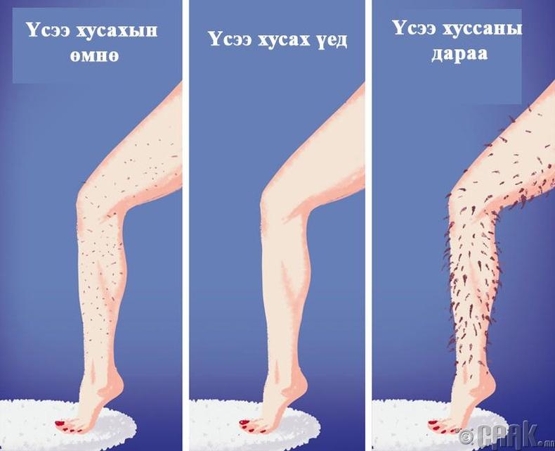 Бид бодохдоо: Хөлийнхөө үсийг хусвал дараа нь илүү их хар үс ургана