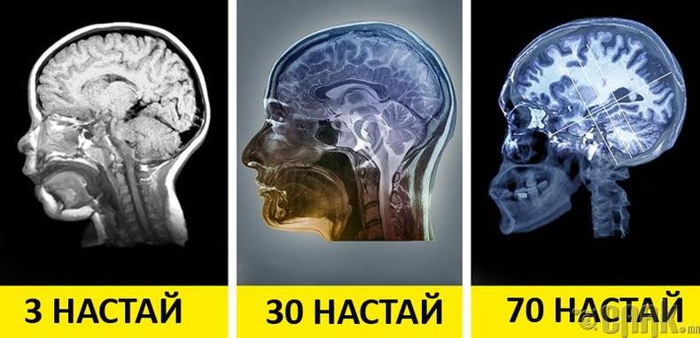 Альцгеймерийн өвчтэй хүний тархины хатингиршил