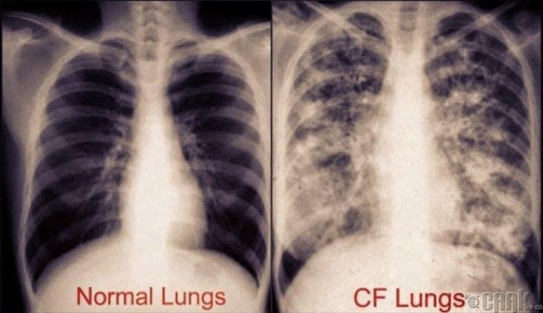 Систик Фиброзиз (Cystic Fibrosis)