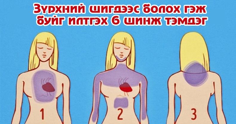 Зүрхний шигдээс болохоос нэг сарын өмнө хэрхэн мэдэх вэ?
