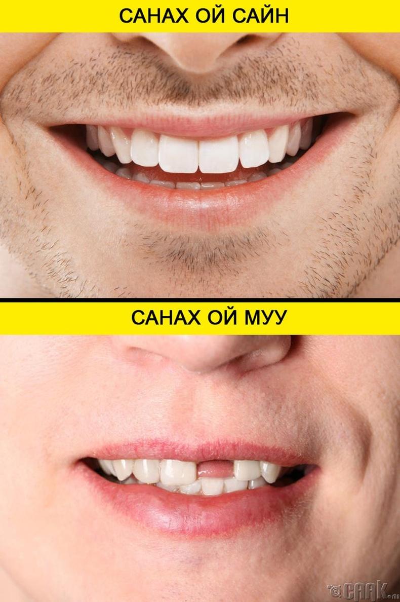 Шүдний эрүүл мэнд санах ойтой холбоотой