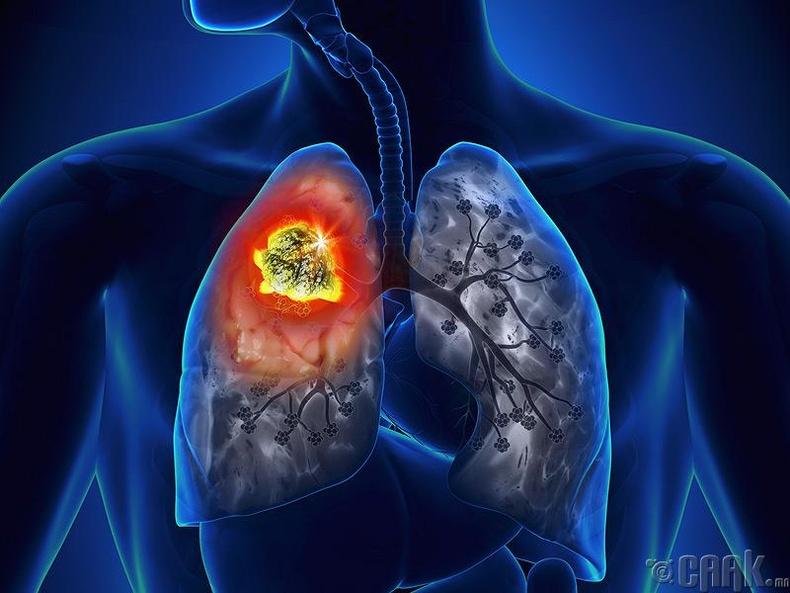 Уушигны хорт хавдар