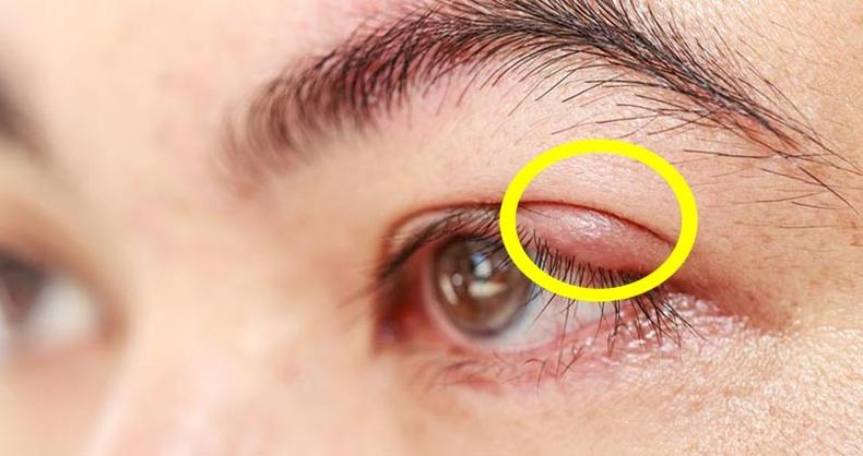 Нүдэн дээр өвдөг гарсан үед хэрхэн хурдан эмчлэх вэ?
