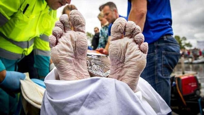 Хорт хавдартай тэмцэх эрдэм шинжилгээний ажилд хандив цуглуулахын тулд 55 цагийн турш 163 км сэлсэн тамирчин Мартен ван дер Вейденийн хөл
