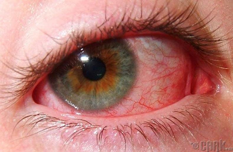 Нүдний гажиг болон харааны өөрчлөлт