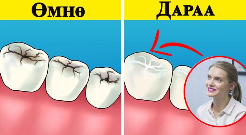 Шүдний эмч дараах зөвлөгөөг хүргэж байна