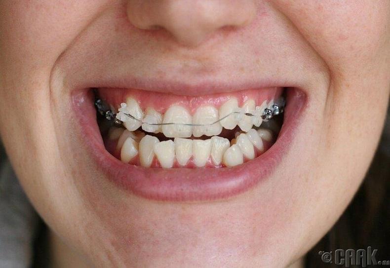 Шүдний аппаратаар шүд эмчилж болох уу?