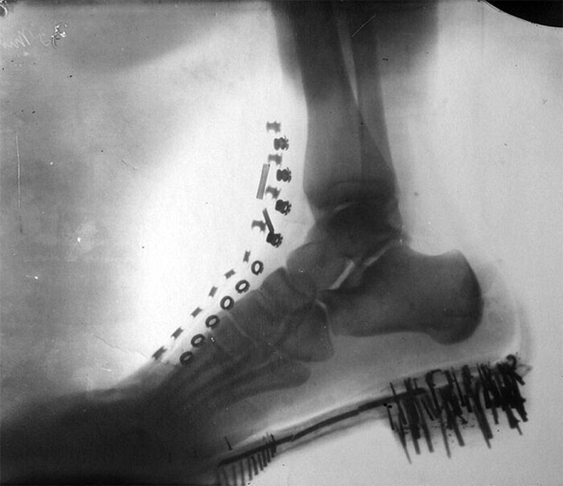 Никола Теслагийн гуталтай хөл