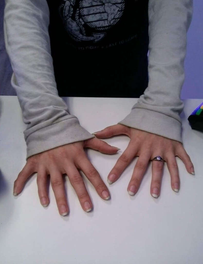 12 хуруутай эмэгтэй
