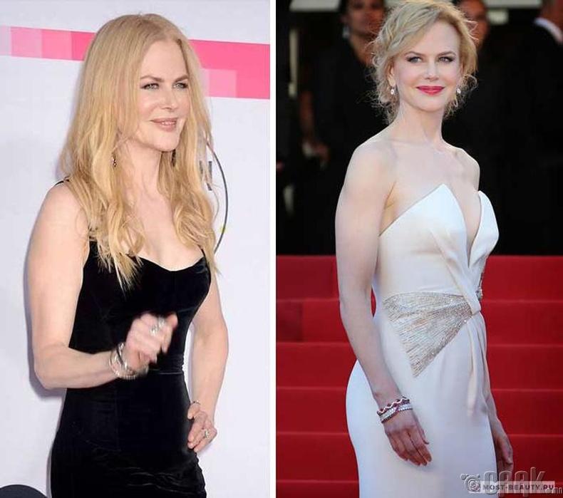 Николь Кидман (Nicole Kidman) – 15,000 доллар