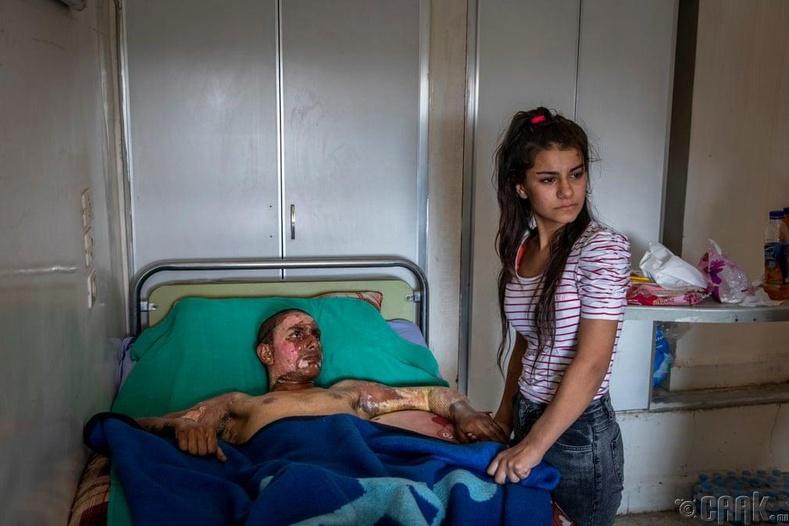 """""""Хэвлэлийн шилдэг зураг"""" төрөлд нэр дэвшигч - """"Гэмтсэн Курд тулаанч эмнэлэгт хандав"""""""