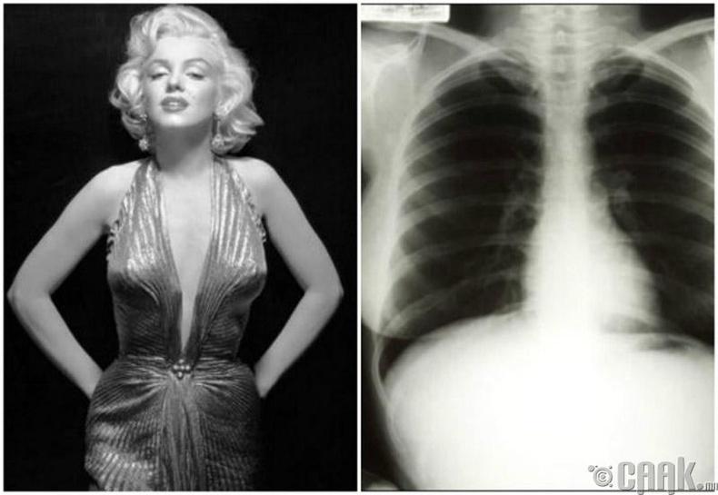 Мэрилин Монрогийн рентген зураг