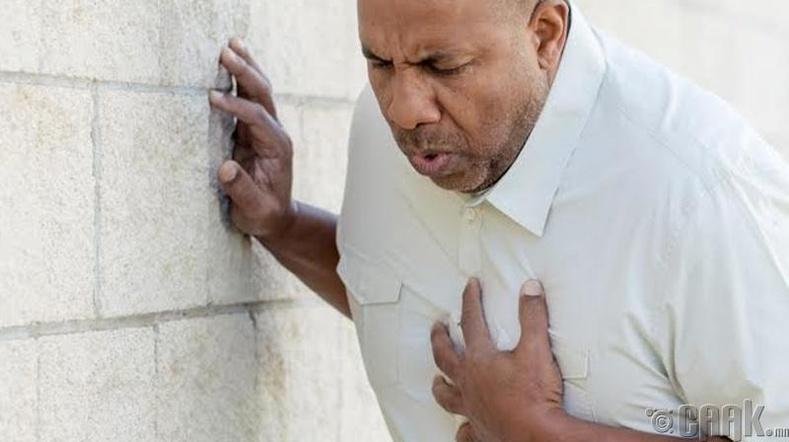Зүрхний ишемийн өвчин