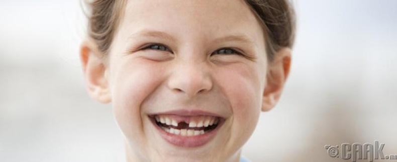Шүдээ авахуулснаас хойш  эхний хоногуудад юу хийж болохгүй вэ?