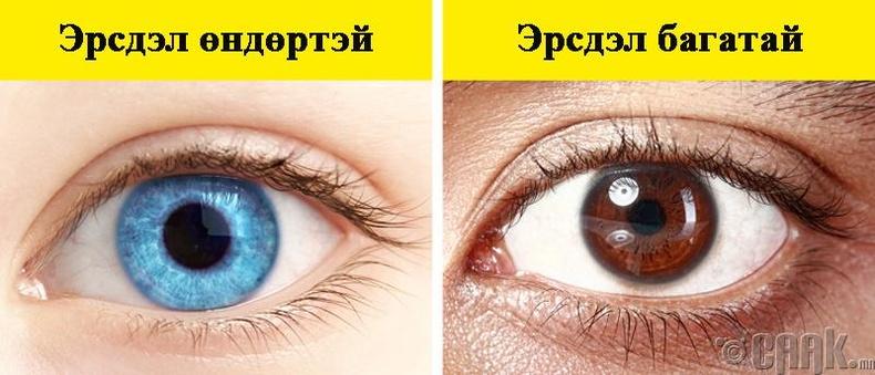 Нүдний хорт хавдрын эрсдэлтэй бүлэг