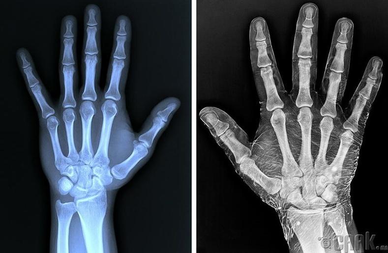 Энгийн гар, иодын уусмалаар арчсан гарын рентген зургийн ялгаа