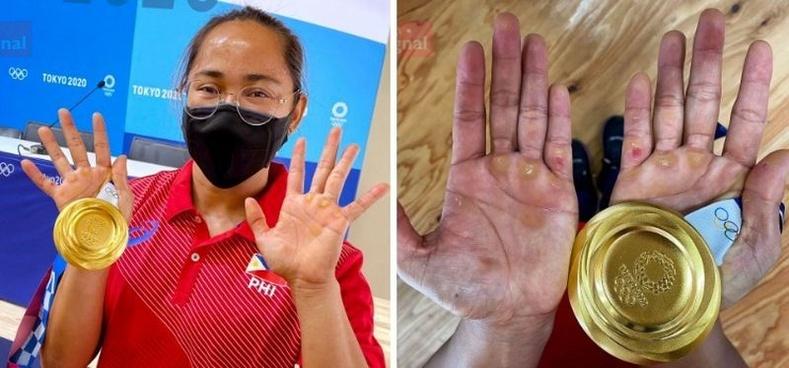 Олимпын аварга болсон Филиппиний хүндийн өргөлтийн тамирчин Хидилин Диасын тэсвэр тэвчээрийн баталгаа