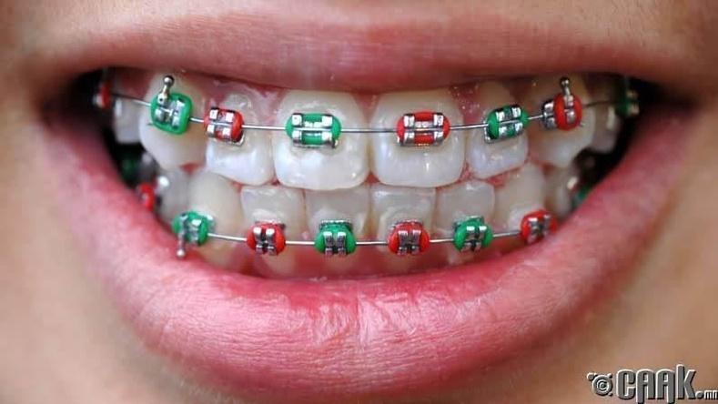 Хуурамч шүдний аппарат