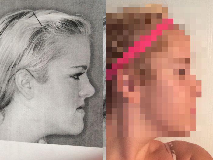 Эрүү нүүрний мэс засалд орсон бүсгүйн өөрчлөлт