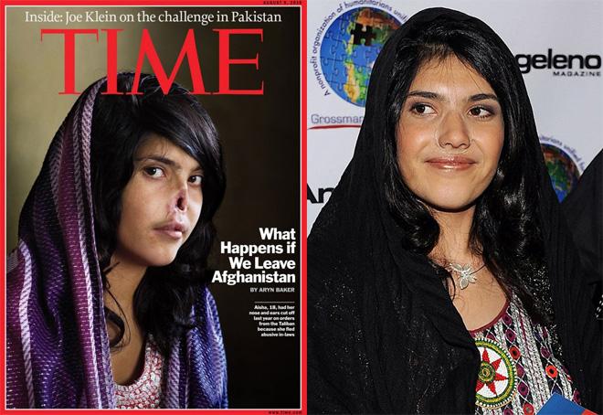 Афганистаны бүсгүй Аишад шинэ хамар хийжээ