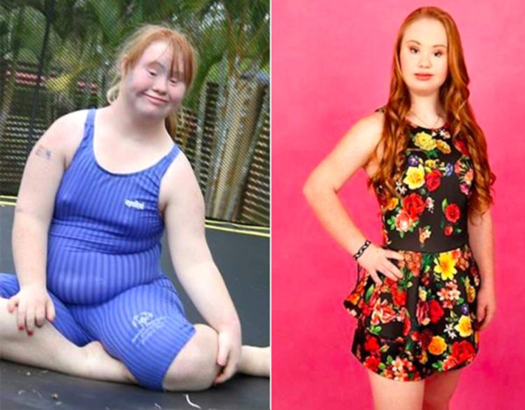 Дауны синдромтой охины гайхалтай өөрчлөлт