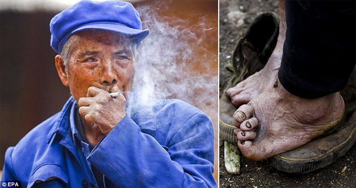 Хятад дахь уяман өвчтөнгүүдийн тосгон