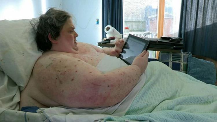 400 кг жинтэй эрийн рентген зураг