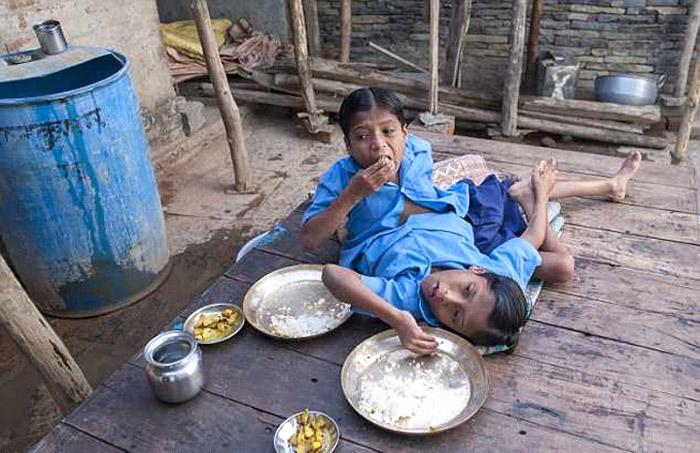 Энэтхэгийн сиамын ихрүүд шуугиан тарьж байна